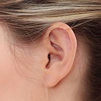 repaired-earlobes